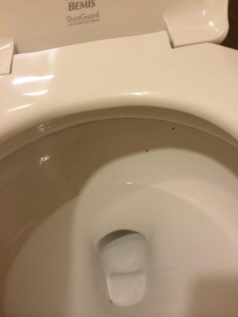 Hilton Denver City Center: Dirty toilet bowl