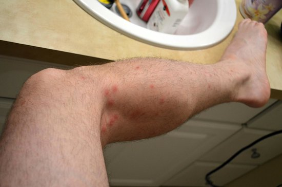 Bed bug bites on my leg - Picture of Pooler, Georgia ...