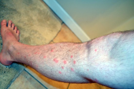 Bed Bug Bites On Legs