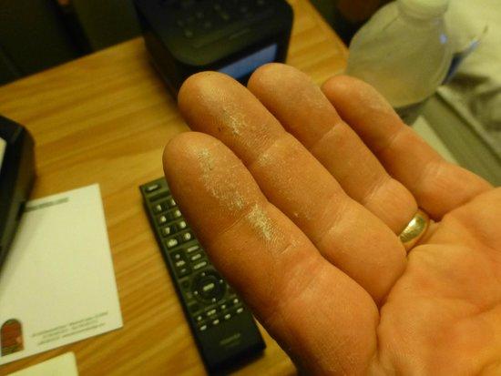 Sierra Nevada Resort & Spa: dust from headboards
