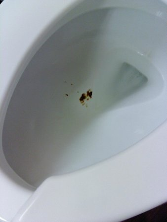 Extended Stay America - Houston - Willowbrook: Feces in toilet