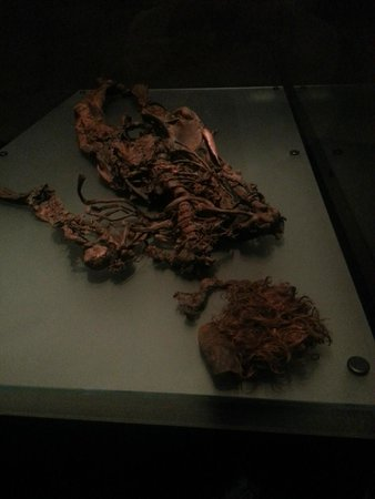 National Museum of Ireland - Archaeology: Bog Body