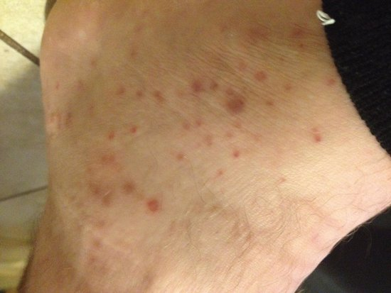 Ramada Milwaukee Downtown : This is not an allergic reaction. This is bug bites of some kind that happened to him & his frie