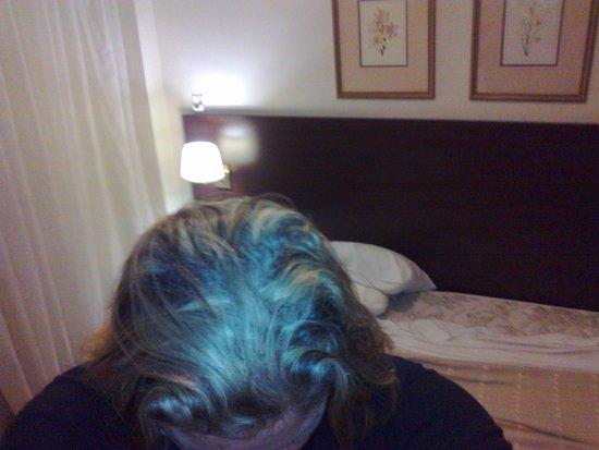 Concorde Hotel: Minha cabeça e cama atrás