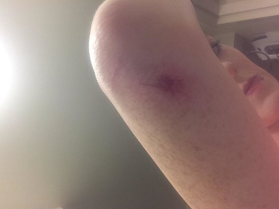 Chattanooga Choo Choo: Injury from sliding patio door handle snapping off