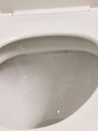 Home2 Suites by Hilton Philadelphia - Convention Center, PA: Poop stains...(not mine)