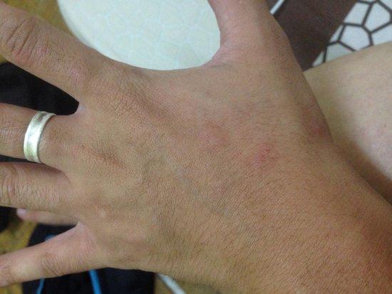 EDU Hostel Jogja: Bite from beg bugs on my hand