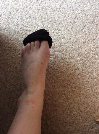 Hampton Inn San Diego/Del Mar : Bug bites still visible a week after the stay