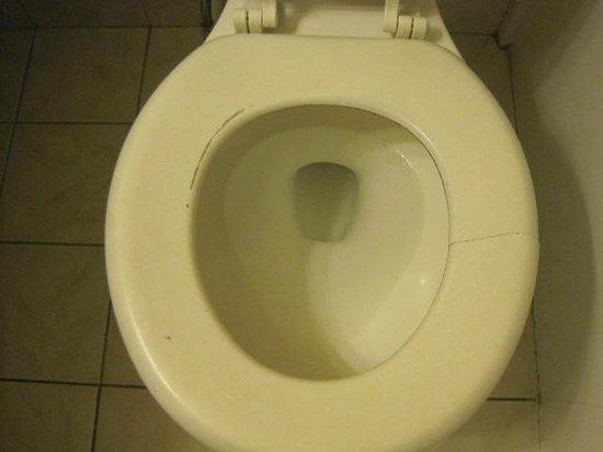 Days Inn by Wyndham Redwood City: Broken Toilet Seat