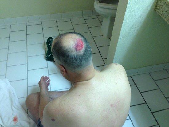 Monroe, Carolina del Norte: Injury on back of head after fall