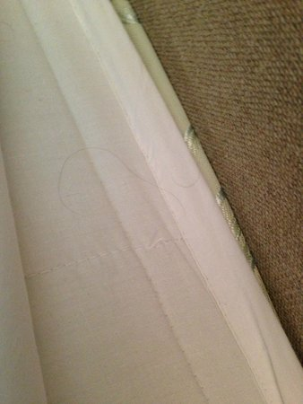 Dale Lodge Hotel: Human hairs on mattress