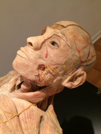 International Museum of Surgical Science: Preserved Human