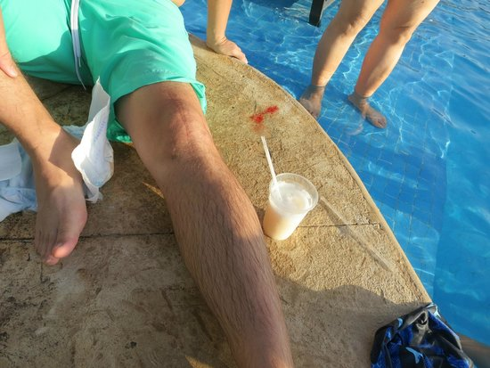 Moon Palace Golf & Spa Resort: Photo of some of the blood right by the pool