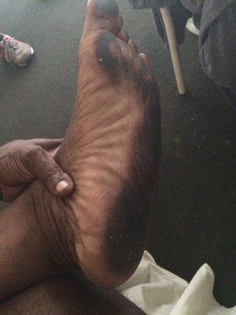 Intown Suites Piedmont: My foot from the hotel after getting out the shower and walking around the room for three minute