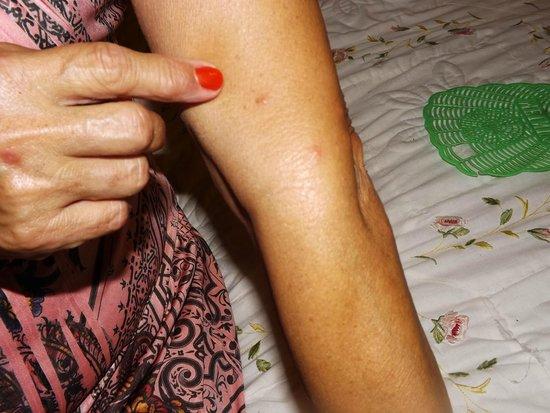Lafayette Motel: Bed Bug Bites