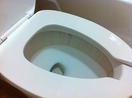 Red Roof Inn Albany Airport : Staining in the toilet