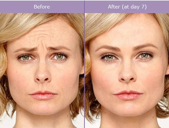 Forever Young Sobe Spa Botox Before After