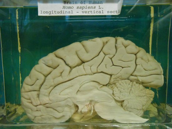 National Museum of Ireland - Natural History : Human brain on view