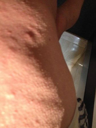 Sheraton Grand Mirage Resort, Gold Coast: welts reaction to the bites
