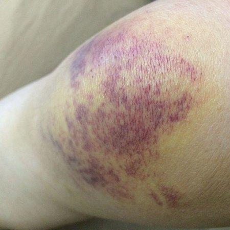 Sofitel So Mauritius: injured knees