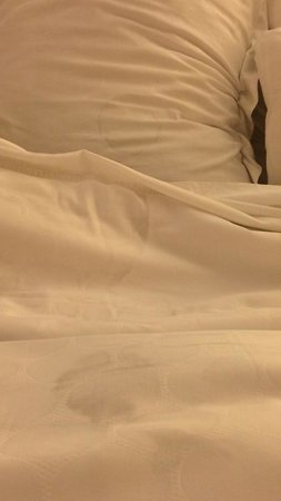 Renaissance Chicago North Shore Hotel: Stains on pillow and sheets upon arrival
