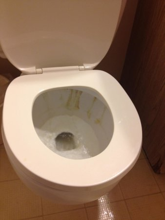 Isaiah Tubbs Resort : stained toilet