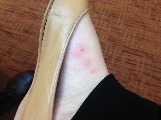 Harlingen, TX: Bug bites on my foot that appeared over night