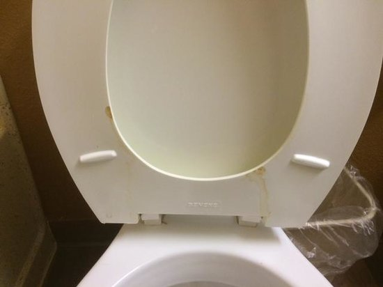 Extended Stay America - Annapolis - Admiral Cochrane Drive: Fecal matter