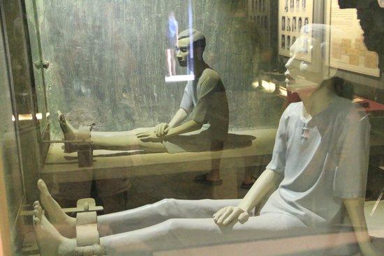 Prisión de Hoa Lo: Living conditions for prisoners, legs in irons