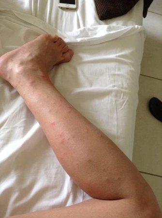 Reef Oasis Beach Resort: комарики покусали чуть чуть
