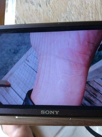 Anantara VeliMaldivesResort : injured wrist with skin burnt off