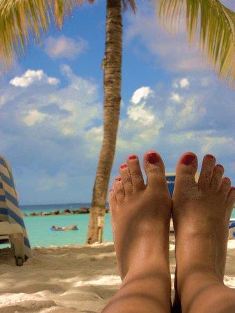 Renaissance Aruba Resort & Casino: Iguana Beach