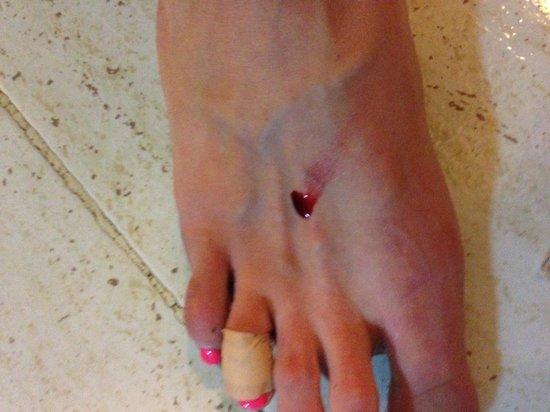 Caybeach Sun: One of the injurys