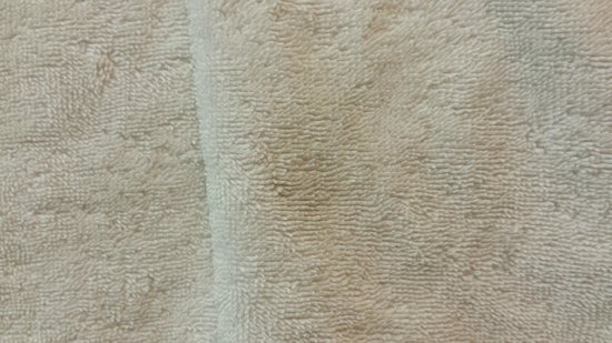 Embassy Suites by Hilton Atlanta Alpharetta: bath towel
