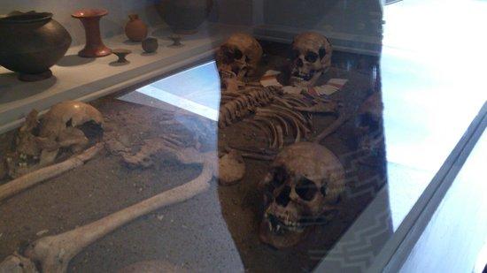 Museo Panama Viejo: Huesos