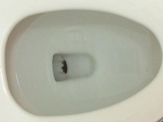 The Breeze Inn: Filthy toilet:just gross