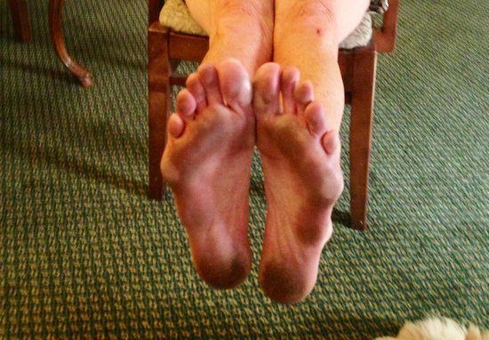 Red Lion Hotel Redding : My feet after walking on the Pres suite carpet