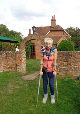 The Pot Kiln: My poor girlfriend on her crutches