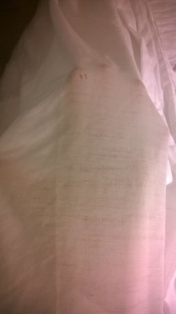 Days Inn - Calgary South: worn out sheets