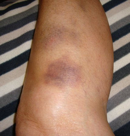 The Strand Hotel: Bruises on legs from negotiating small space