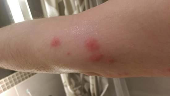 Extended Stay America - Dallas - Coit Road: BED BUG BITES!