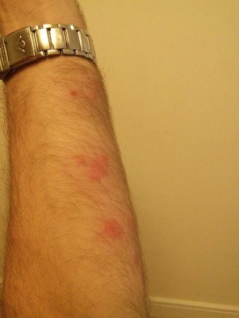 Cornella de Llobregat, สเปน: bug bites on my arm