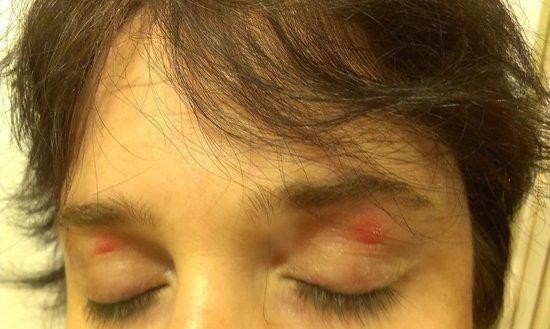 Hotel Stromboli: bed bugs bites