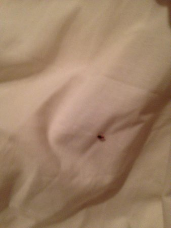 New Generation Hostel Urban Brera: BedBug on my bed