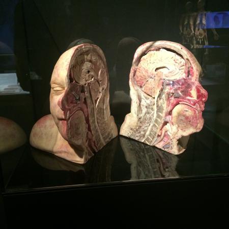 Body Worlds: The Happiness Project : L'intérieur d'1 crâne