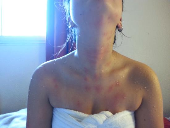 Rosny-sous-Bois, France : Bug bites from 2nd morning of stay
