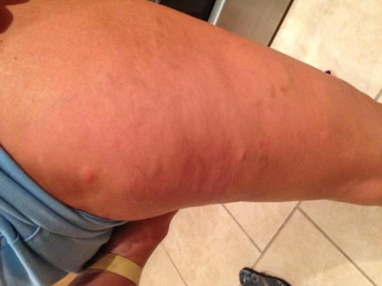 Port Saint Lucie, ฟลอริด้า: bedbugs bites