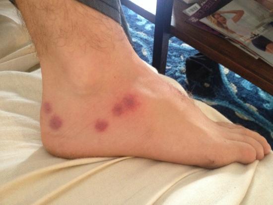 Fleming's Hotel Muenchen-Schwabing : Bed Bug bites after 3 weeks
