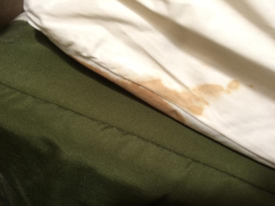 BEST WESTERN Rockland: Stained mattress cover. Gross.