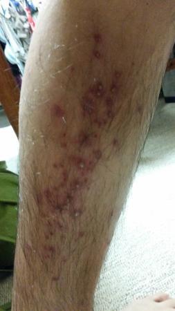My husband got infected after having a foot massage at Su Bi Beauty Salon & Spa